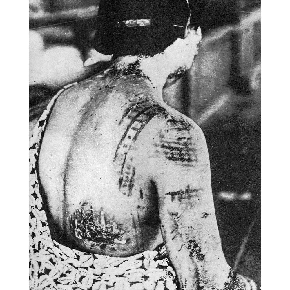 Gonichi Kimura, motifs de Kimono incrustés par brûlure dans la peau, premier hôpital militaire d'Hiroshima, vers le 15 août 1945 crayon et poudre graphite sur trame digigraphique 75 x 60 cm, 2019